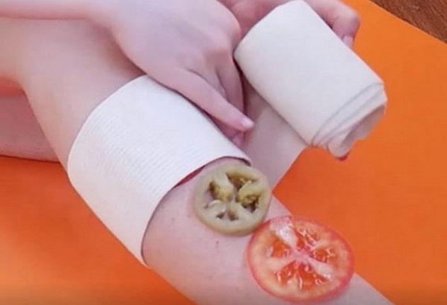 Лекуване на разширени вени със зелени домати