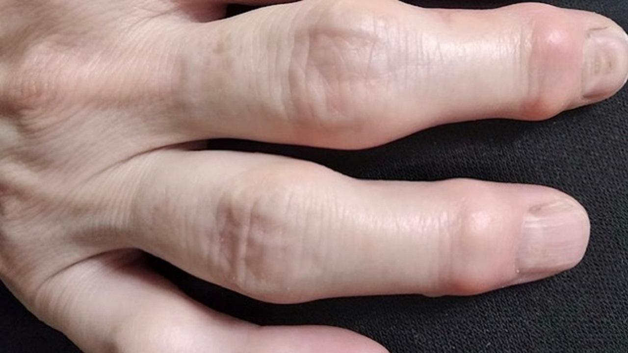 Какви грешки правим при дезинфекцията на ръцете? - Здравница