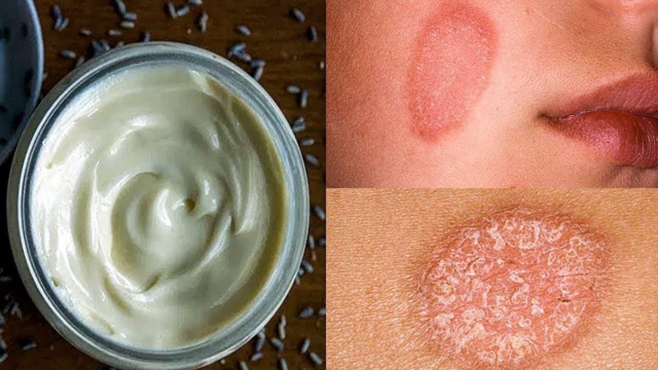 Масла для лечения псориаза | Всё о псориазе